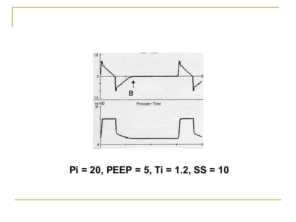 Pi = 20, PEEP = 5, Ti = 1.2, SS = 10