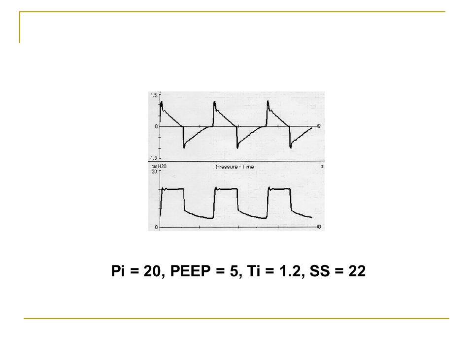 Pi = 20, PEEP = 5, Ti = 1.2, SS = 22