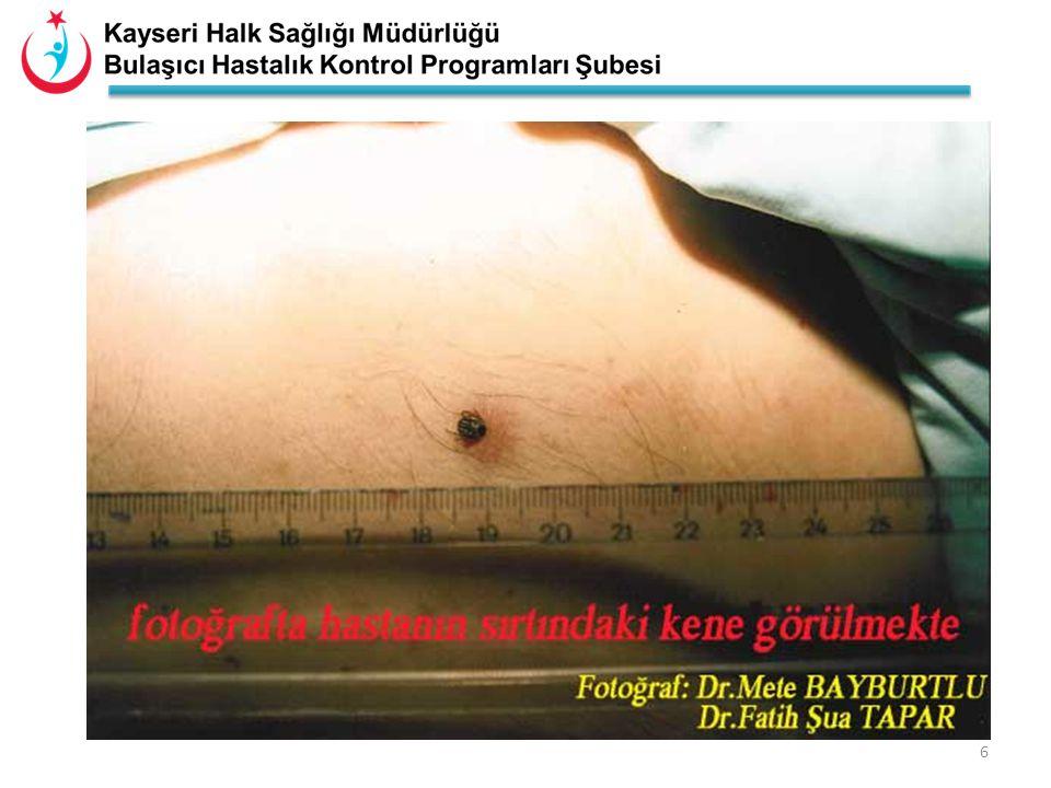 5 LarvaNimfErkek Erişkin KeneDişi Erişkin Kene Nimf (deriye yapışmış) Erkek Erişkin Hyalomma Dişi Erişkin Hyalomma kan emmiş