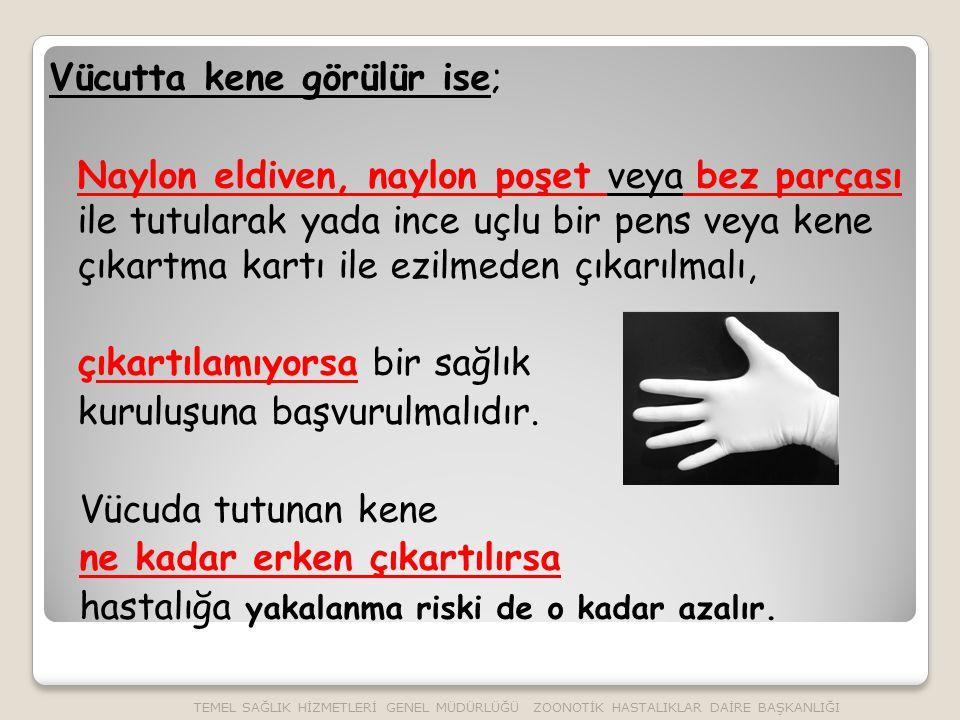 Vücutta kene görülür ise; Naylon eldiven, naylon poşet veya bez parçası ile tutularak yada ince uçlu bir pens veya kene çıkartma kartı ile ezilmeden çıkarılmalı, çıkartılamıyorsa bir sağlık kuruluşuna başvurulmalıdır.