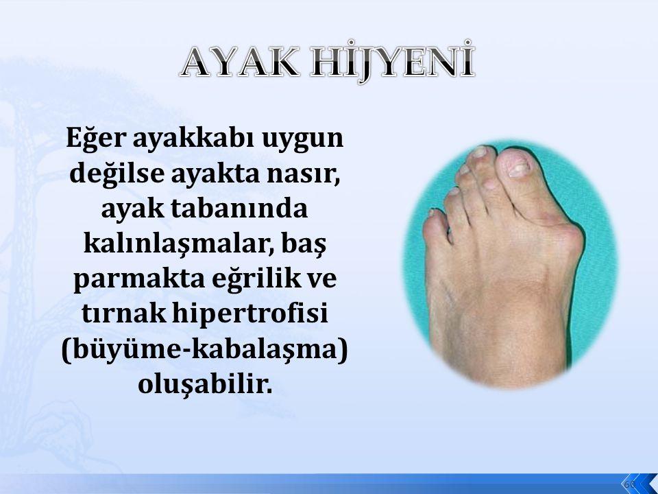 Eğer ayakkabı uygun değilse ayakta nasır, ayak tabanında kalınlaşmalar, baş parmakta eğrilik ve tırnak hipertrofisi (büyüme-kabalaşma) oluşabilir.
