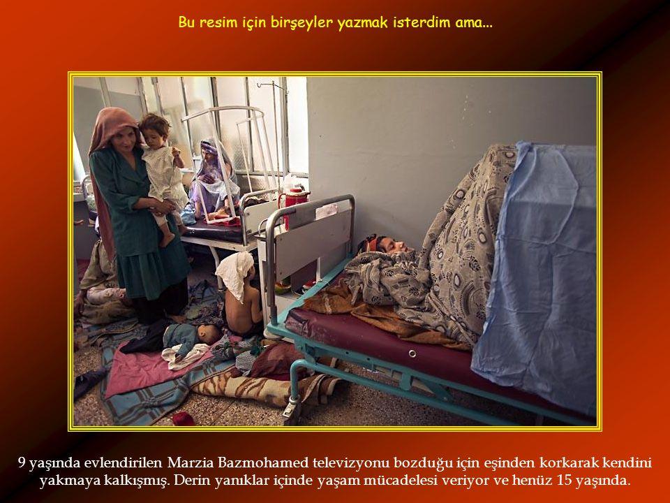 9 yaşında evlendirilen Marzia Bazmohamed televizyonu bozduğu için eşinden korkarak kendini yakmaya kalkışmış.