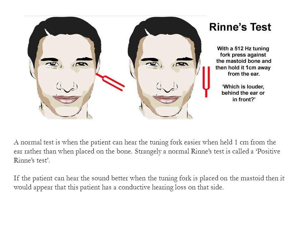 RİNNE, Kayıplara göre Sonuçları Normal İşitme Normal işiten bir kulakta hava yolu ile olan iletim, kemik yolu ile olan iletimin ortalama iki katıdır.
