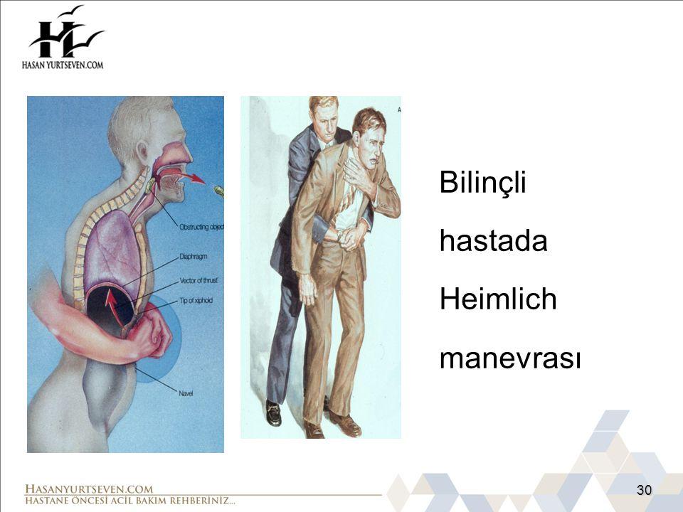 30 Bilinçli hastada Heimlich manevrası