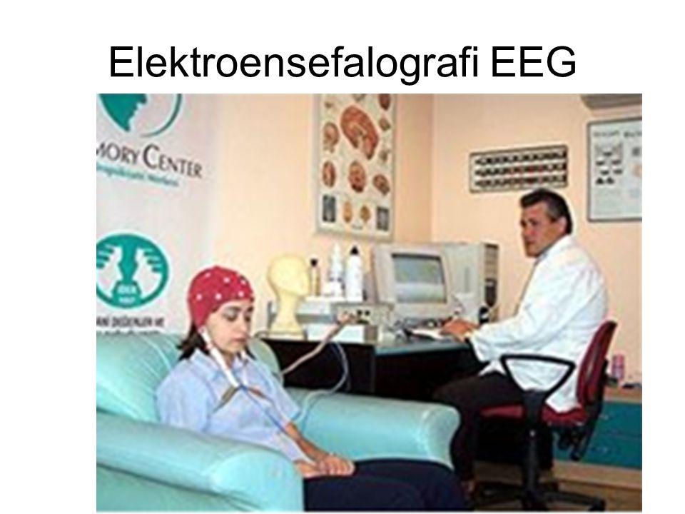 Elektroensefalografi EEG