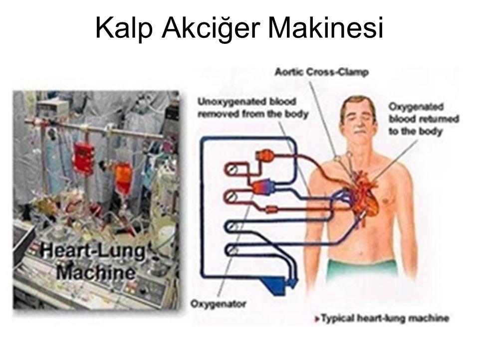 Kalp Akciğer Makinesi