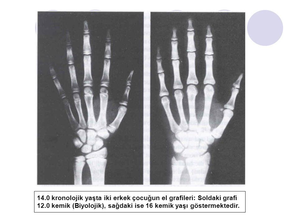 14.0 kronolojik yaşta iki erkek çocuğun el grafileri: Soldaki grafi 12.0 kemik (Biyolojik), sağdaki ise 16 kemik yaşı göstermektedir.
