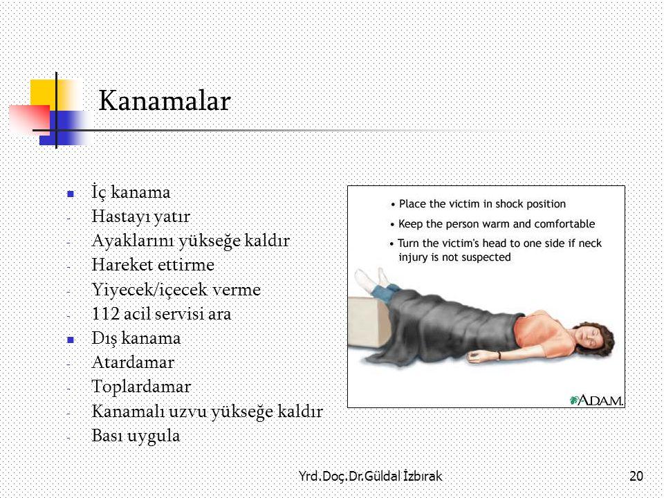 Yrd.Doç.Dr.Güldal İzbırak20 Kanamalar İç kanama - Hastayı yatır - Ayaklarını yükseğe kaldır - Hareket ettirme - Yiyecek/içecek verme - 112 acil servisi ara Dış kanama - Atardamar - Toplardamar - Kanamalı uzvu yükseğe kaldır - Bası uygula