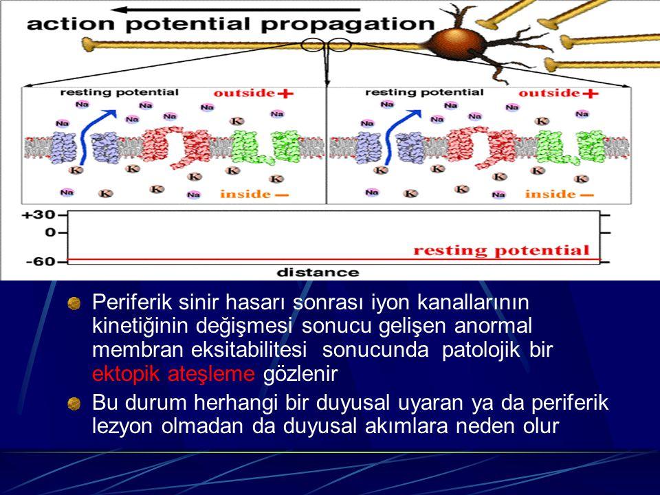 Periferik sinir hasarı sonrası iyon kanallarının kinetiğinin değişmesi sonucu gelişen anormal membran eksitabilitesi sonucunda patolojik bir ektopik a