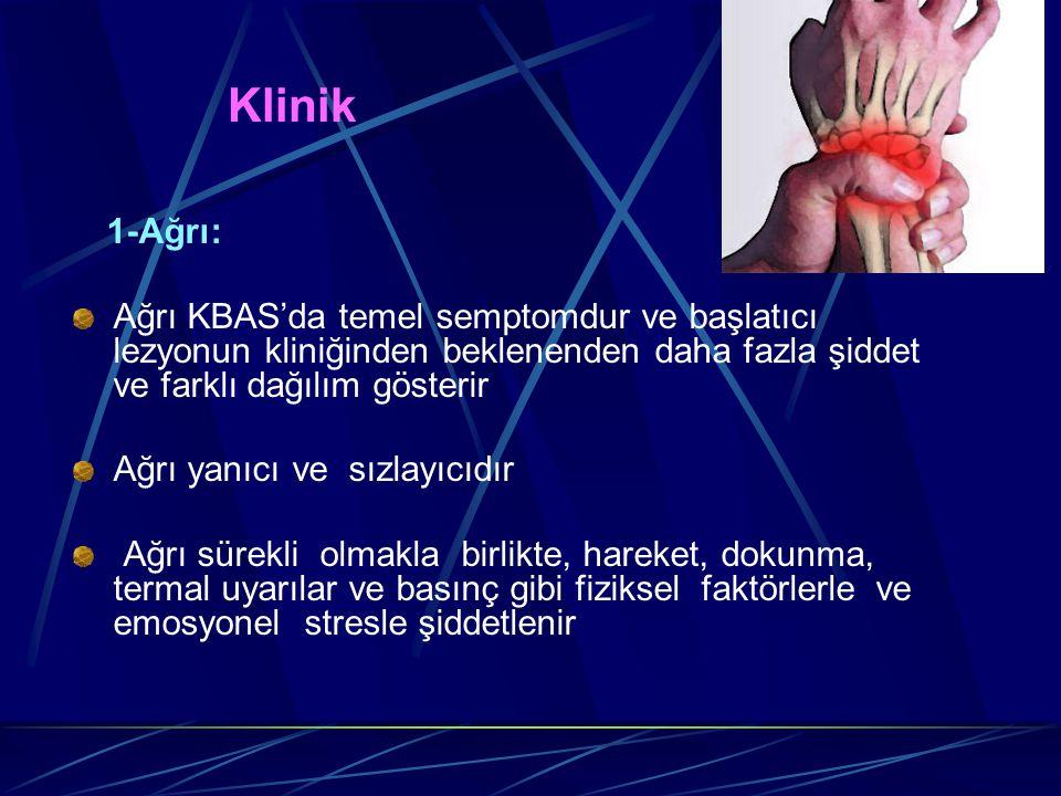 Klinik 1-Ağrı: Ağrı KBAS'da temel semptomdur ve başlatıcı lezyonun kliniğinden beklenenden daha fazla şiddet ve farklı dağılım gösterir Ağrı yanıcı ve