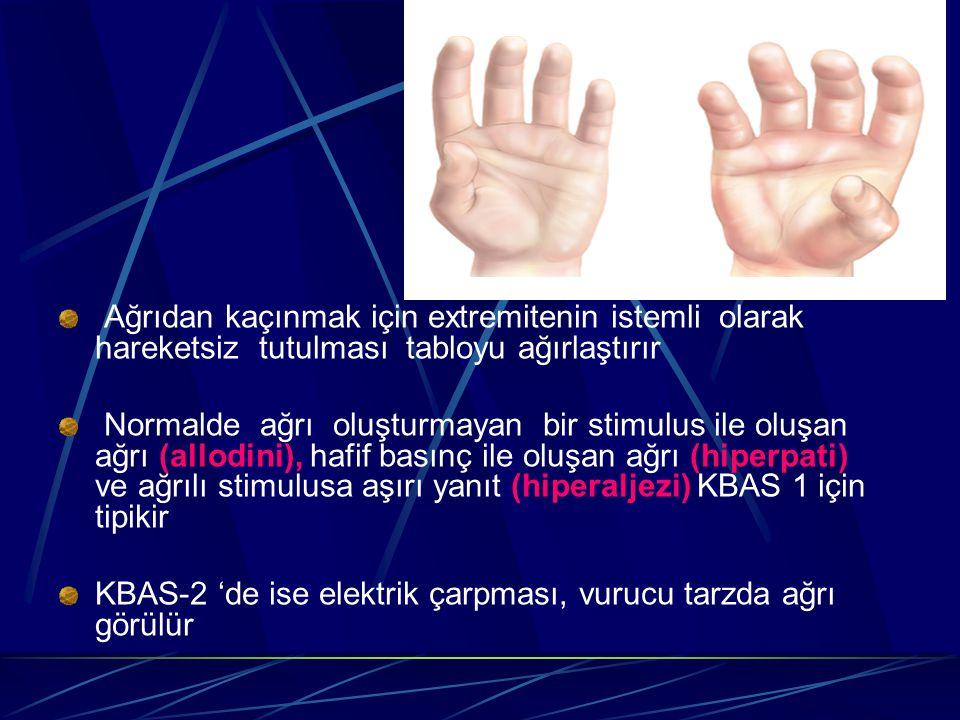 Ağrıdan kaçınmak için extremitenin istemli olarak hareketsiz tutulması tabloyu ağırlaştırır Normalde ağrı oluşturmayan bir stimulus ile oluşan ağrı (a