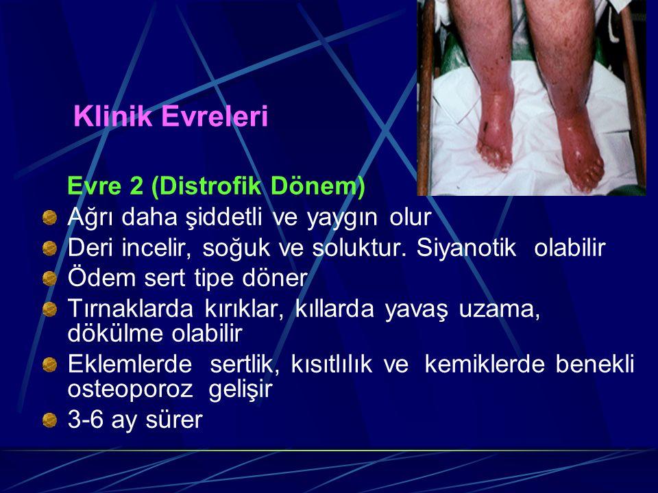 Klinik Evreleri Evre 2 (Distrofik Dönem) Ağrı daha şiddetli ve yaygın olur Deri incelir, soğuk ve soluktur. Siyanotik olabilir Ödem sert tipe döner Tı