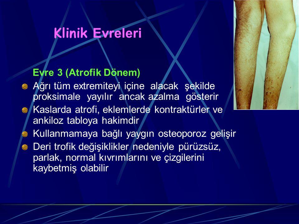 Klinik Evreleri Evre 3 (Atrofik Dönem) Ağrı tüm extremiteyi içine alacak şekilde proksimale yayılır ancak azalma gösterir Kaslarda atrofi, eklemlerde