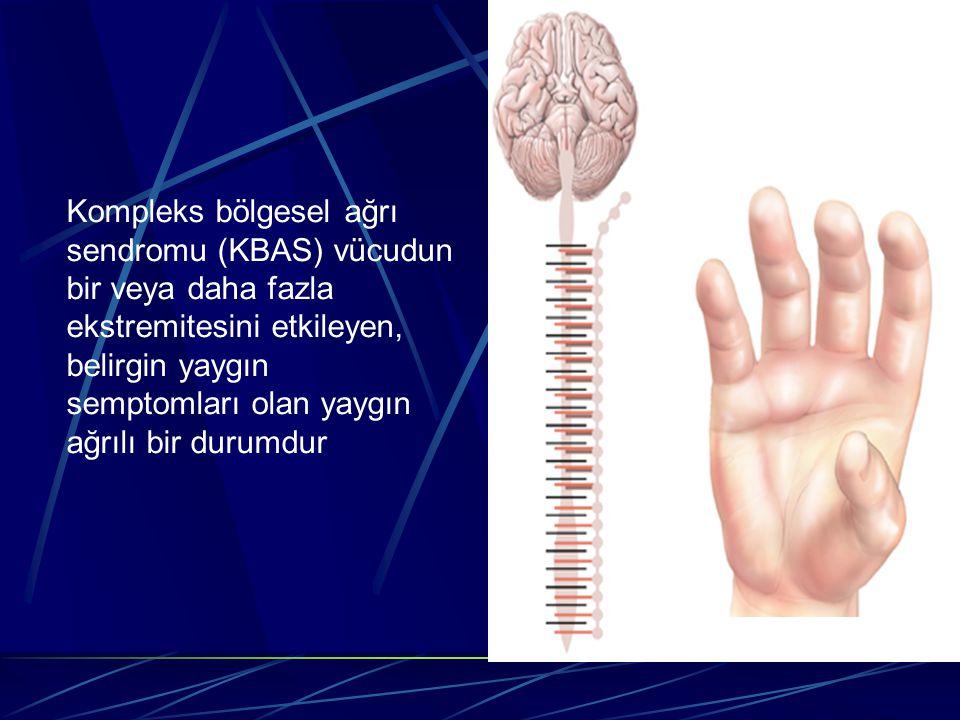Kompleks bölgesel ağrı sendromu (KBAS) vücudun bir veya daha fazla ekstremitesini etkileyen, belirgin yaygın semptomları olan yaygın ağrılı bir durumd