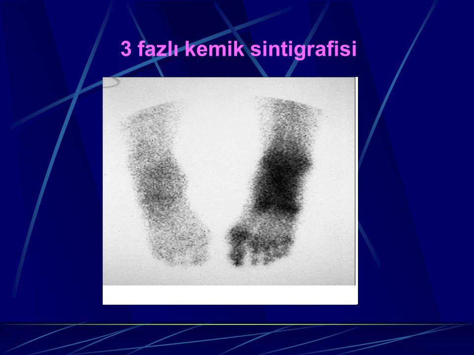 3 fazlı kemik sintigrafisi