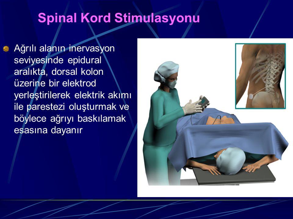 Spinal Kord Stimulasyonu Ağrılı alanın inervasyon seviyesinde epidural aralıkta, dorsal kolon üzerine bir elektrod yerleştirilerek elektrik akımı ile