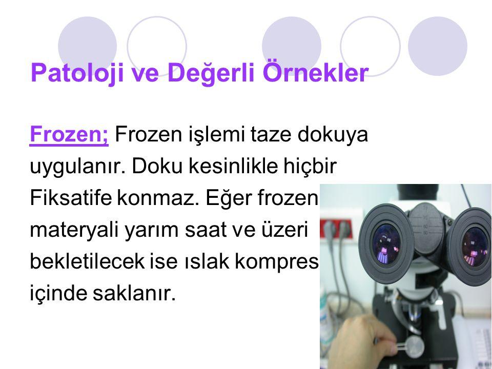Patoloji ve Değerli Örnekler Frozen; Frozen işlemi taze dokuya uygulanır.