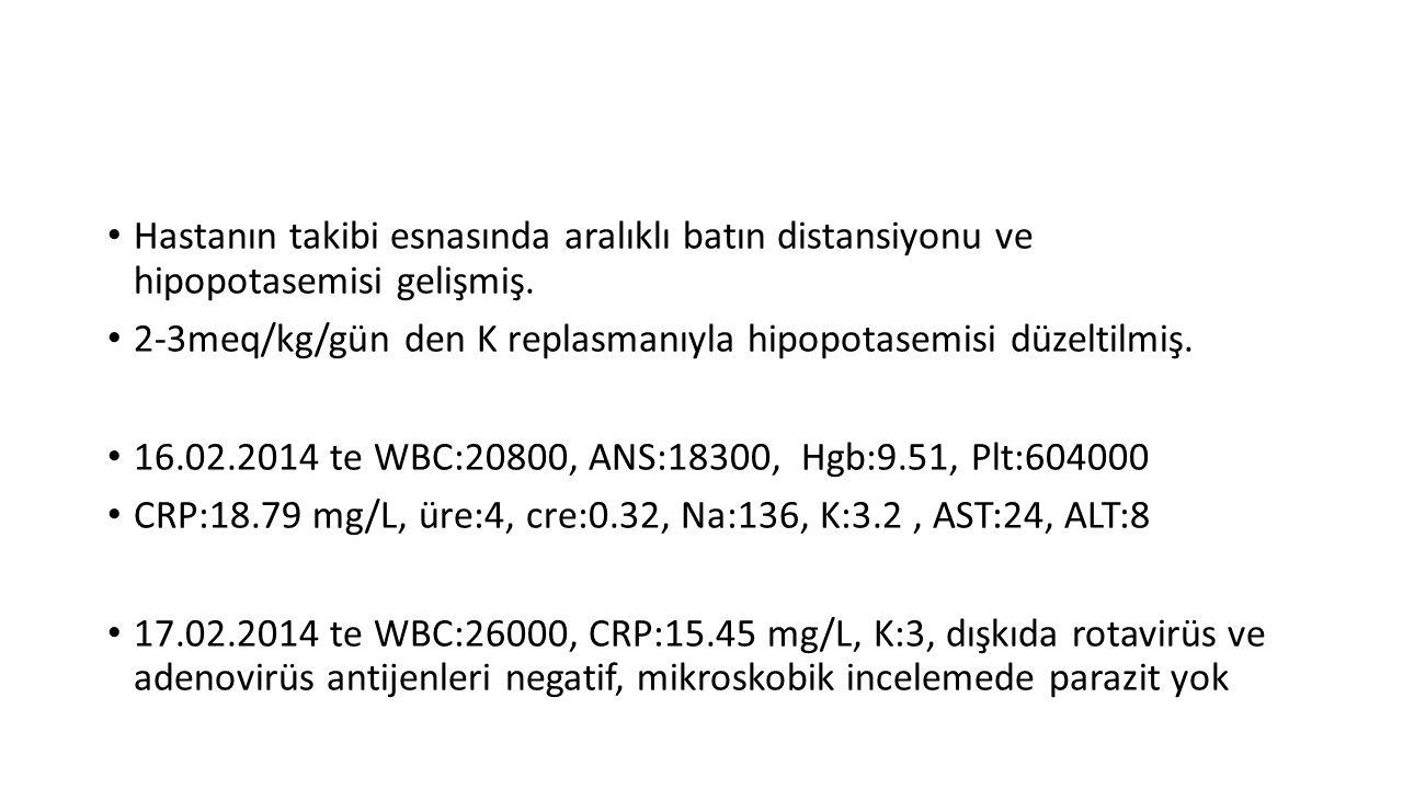 Hastanın takibi esnasında aralıklı batın distansiyonu ve hipopotasemisi gelişmiş. 2-3meq/kg/gün den K replasmanıyla hipopotasemisi düzeltilmiş. 16.02.