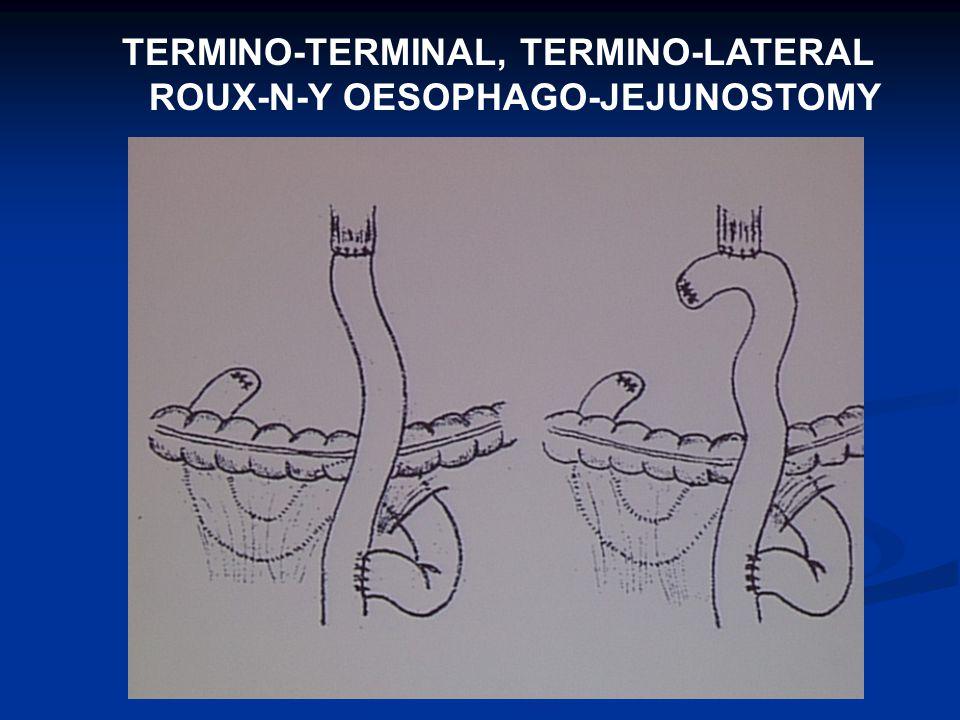 TERMINO-TERMINAL, TERMINO-LATERAL ROUX-N-Y OESOPHAGO-JEJUNOSTOMY