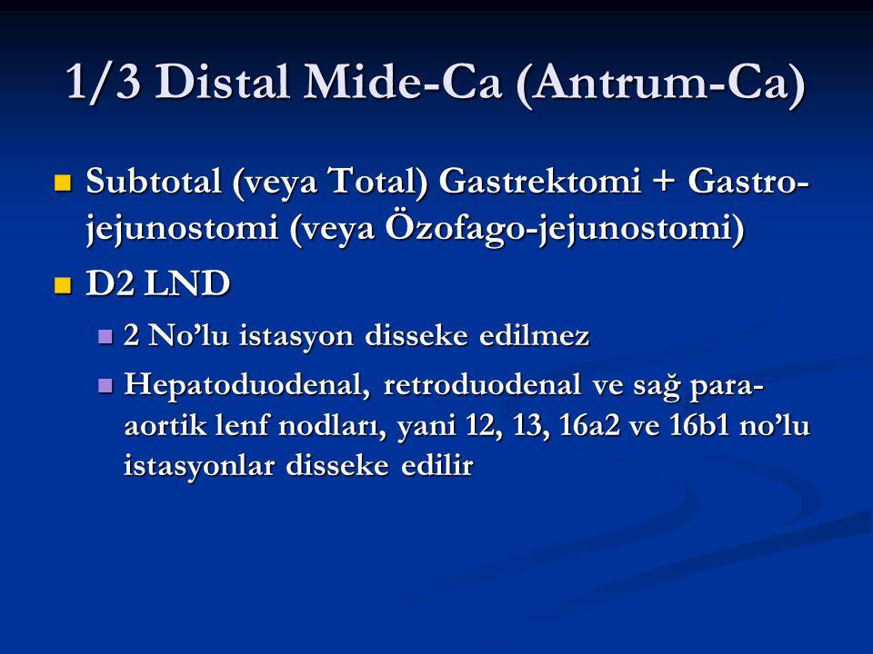 1/3 Distal Mide-Ca (Antrum-Ca) Subtotal (veya Total) Gastrektomi + Gastro- jejunostomi (veya Özofago-jejunostomi) Subtotal (veya Total) Gastrektomi +