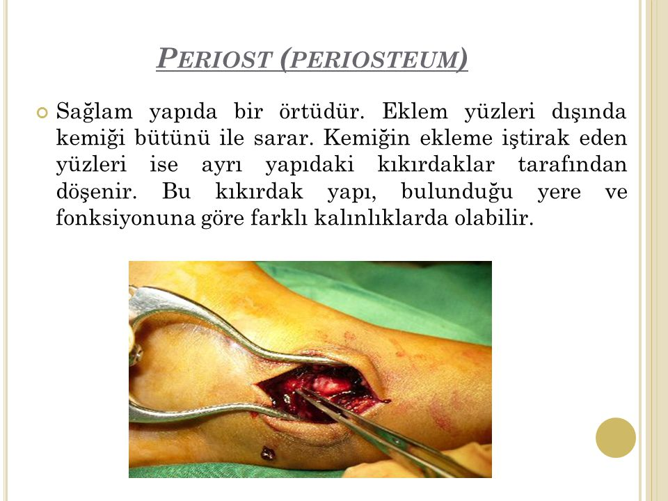 P ERIOST ( PERIOSTEUM ) Sağlam yapıda bir örtüdür.
