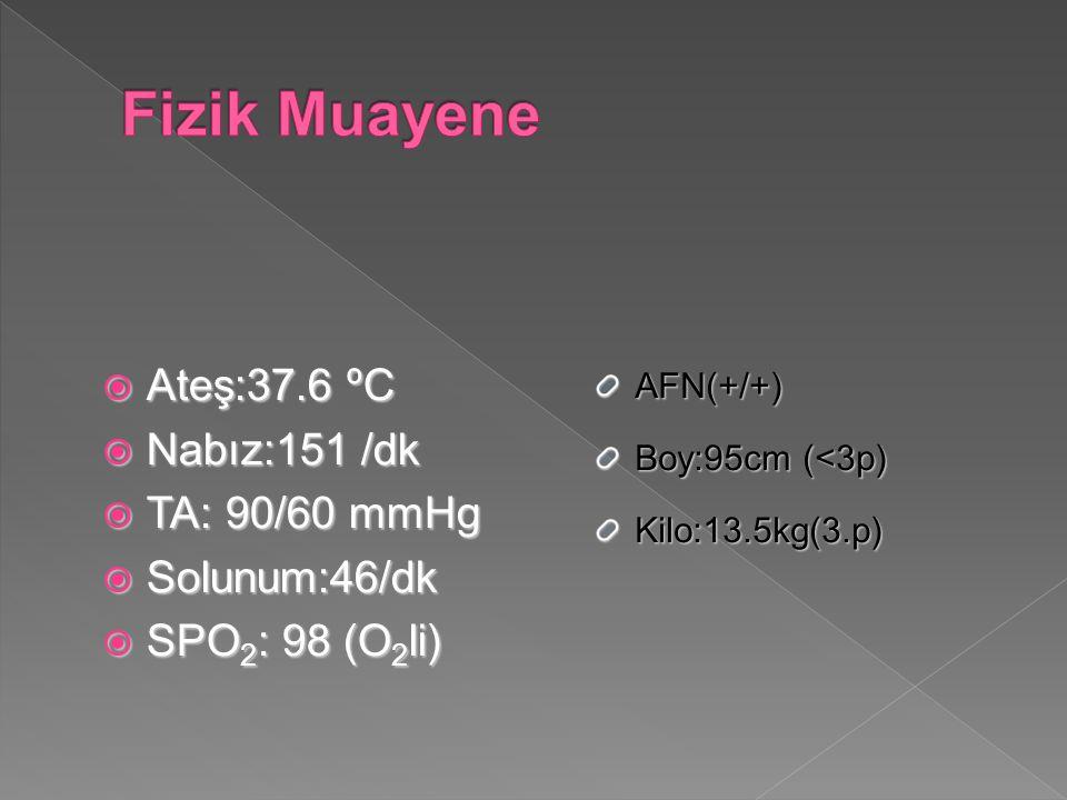  Ateş:37.6 ºC  Nabız:151 /dk  TA: 90/60 mmHg  Solunum:46/dk  SPO 2 : 98 (O 2 li) AFN(+/+) Boy:95cm (<3p) Kilo:13.5kg(3.p)