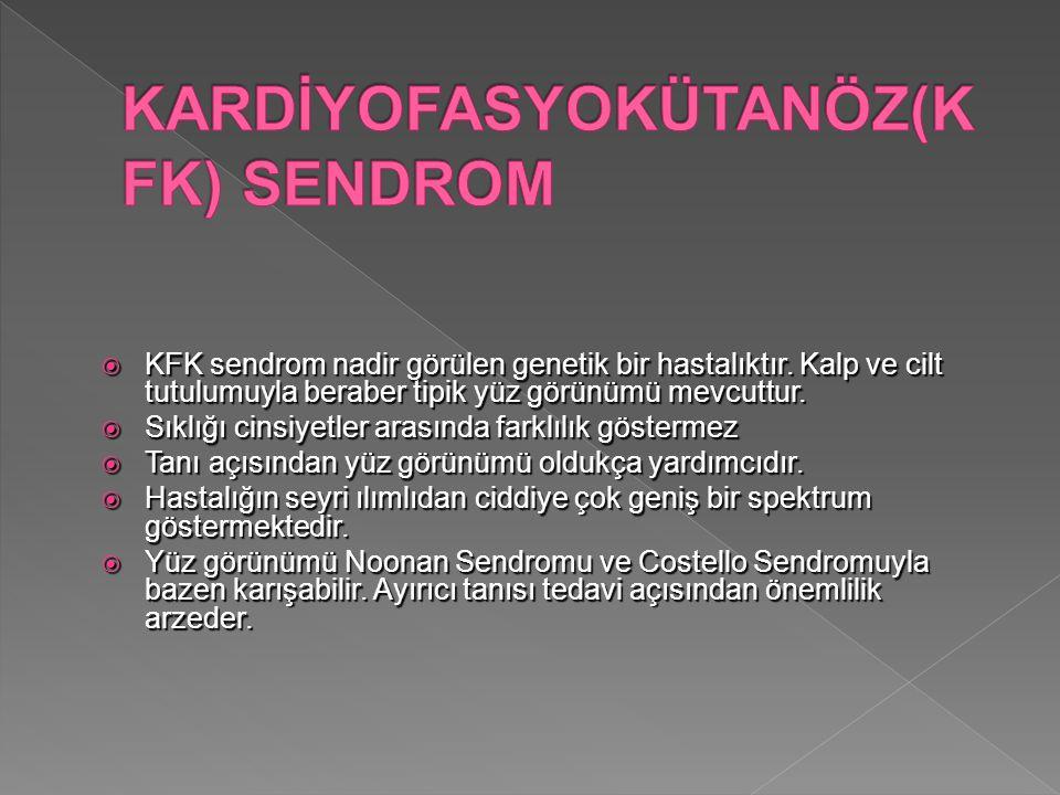  KFK sendrom nadir görülen genetik bir hastalıktır. Kalp ve cilt tutulumuyla beraber tipik yüz görünümü mevcuttur.  Sıklığı cinsiyetler arasında far