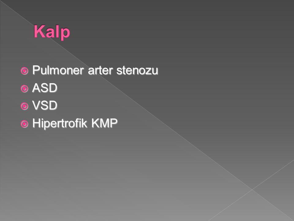  Pulmoner arter stenozu  ASD  VSD  Hipertrofik KMP