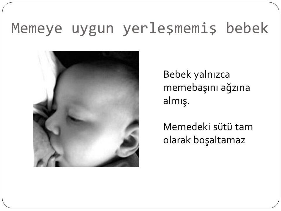 Memeye uygun yerleşmemiş bebek Bebek yalnızca memebaşını ağzına almış.