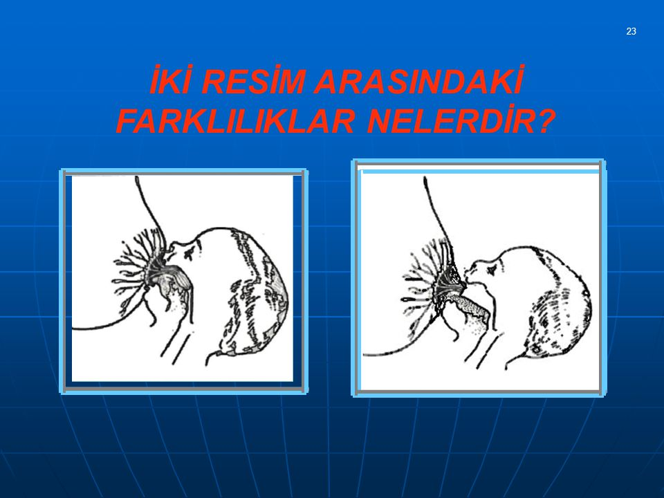 4 ) Parmakları Areola ya çok yakın tutma 5 ) Parmaklarla meme ucunu ve Areolayı sıkıştırıp bebeğin ağzına itme 6 ) Memeyi makas tutuşu ile tutma 7 ) Memeyi parmakla bebeğin burnundan uzaklaştırma