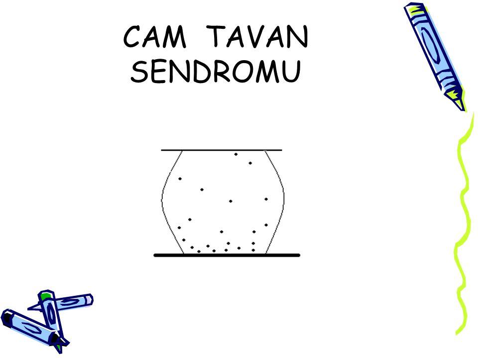 CAM TAVAN SENDROMU