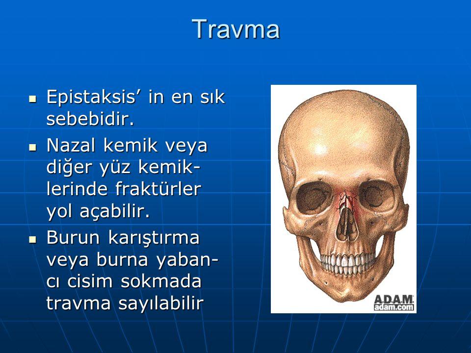 Travma Epistaksis' in en sık sebebidir. Epistaksis' in en sık sebebidir. Nazal kemik veya diğer yüz kemik- lerinde fraktürler yol açabilir. Nazal kemi