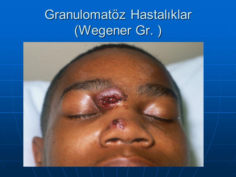 Granulomatöz Hastalıklar (Wegener Gr. )