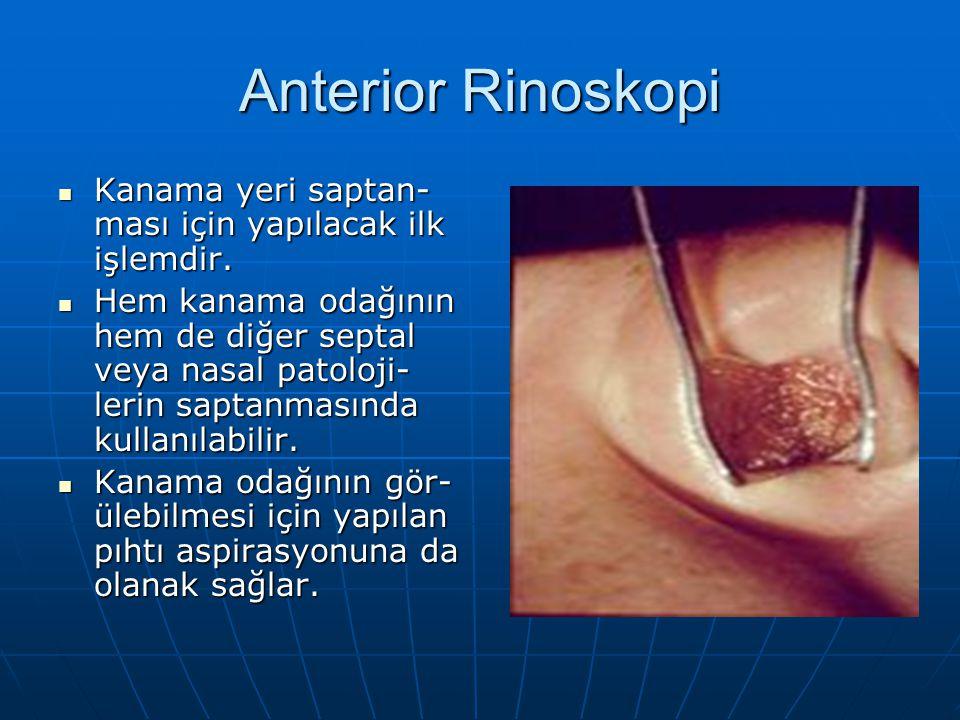 Anterior Rinoskopi Kanama yeri saptan- ması için yapılacak ilk işlemdir. Kanama yeri saptan- ması için yapılacak ilk işlemdir. Hem kanama odağının hem