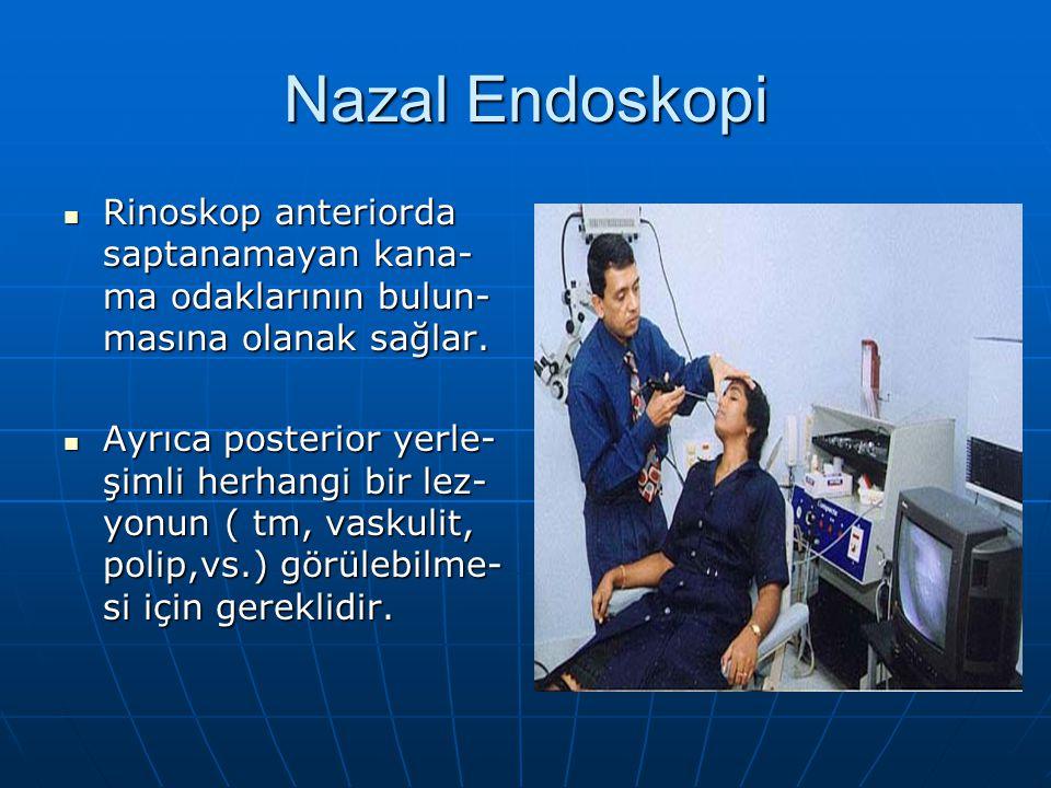 Nazal Endoskopi Rinoskop anteriorda saptanamayan kana- ma odaklarının bulun- masına olanak sağlar. Rinoskop anteriorda saptanamayan kana- ma odakların