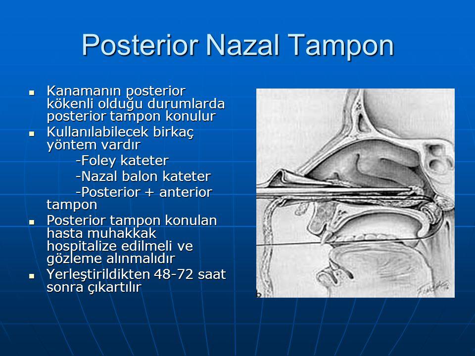 Posterior Nazal Tampon Kanamanın posterior kökenli olduğu durumlarda posterior tampon konulur Kanamanın posterior kökenli olduğu durumlarda posterior