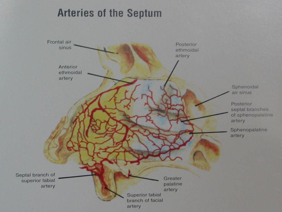 Arter Ligasyonu Endikasyon; Konservatif yöntemlerin başarısızlığı Konservatif yöntemlerin başarısızlığı Posterior nazal tamponun riskli olduğu Posterior nazal tamponun riskli olduğu durumlarda durumlarda Pulmoner veya kardiyovasküler sorunu Pulmoner veya kardiyovasküler sorunu olanlarda olanlarda Transfüzyon sorunu olanlarda Transfüzyon sorunu olanlarda