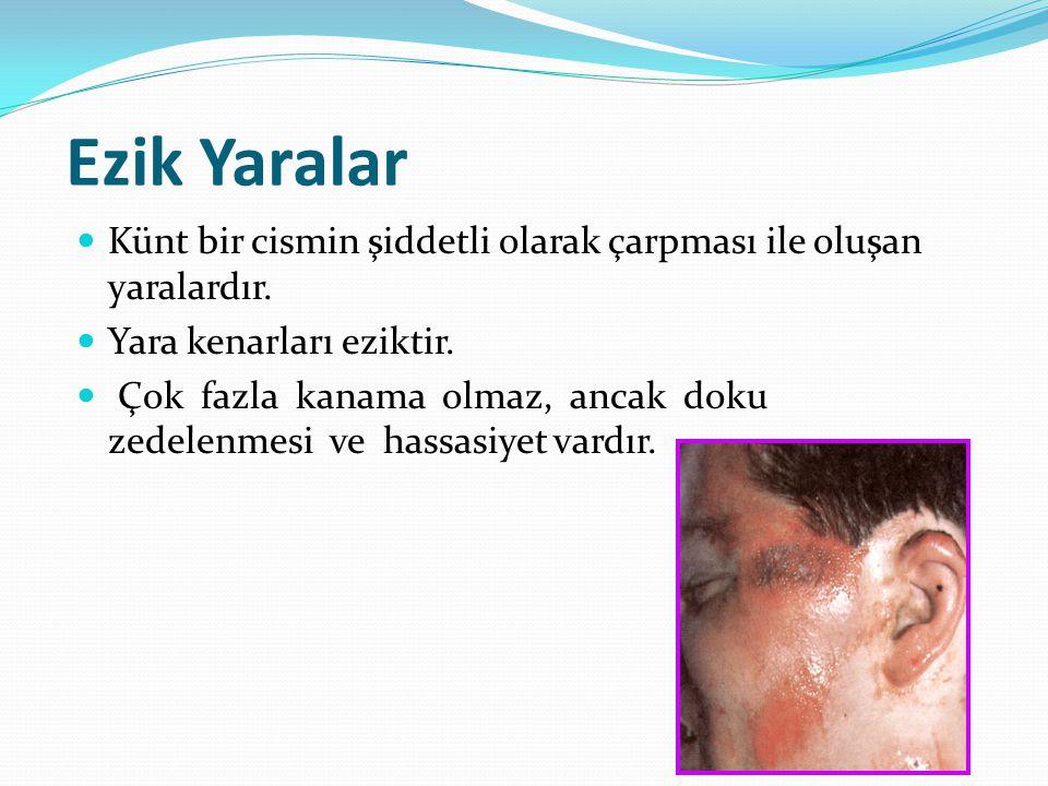 Ezik Yaralar Künt bir cismin şiddetli olarak çarpması ile oluşan yaralardır. Yara kenarları eziktir. Çok fazla kanama olmaz, ancak doku zedelenmesi ve