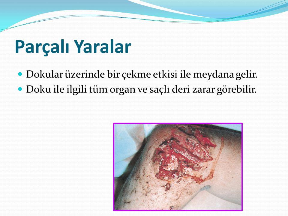 Parçalı Yaralar Dokular üzerinde bir çekme etkisi ile meydana gelir. Doku ile ilgili tüm organ ve saçlı deri zarar görebilir.
