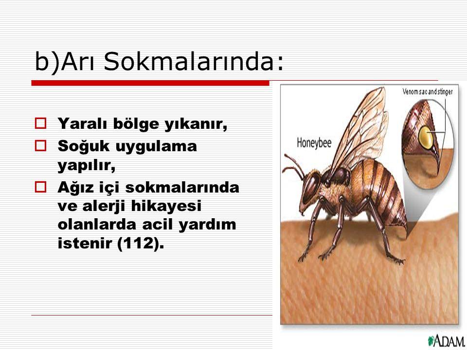 b)Arı Sokmalarında:  Yaralı bölge yıkanır,  Soğuk uygulama yapılır,  Ağız içi sokmalarında ve alerji hikayesi olanlarda acil yardım istenir (112).