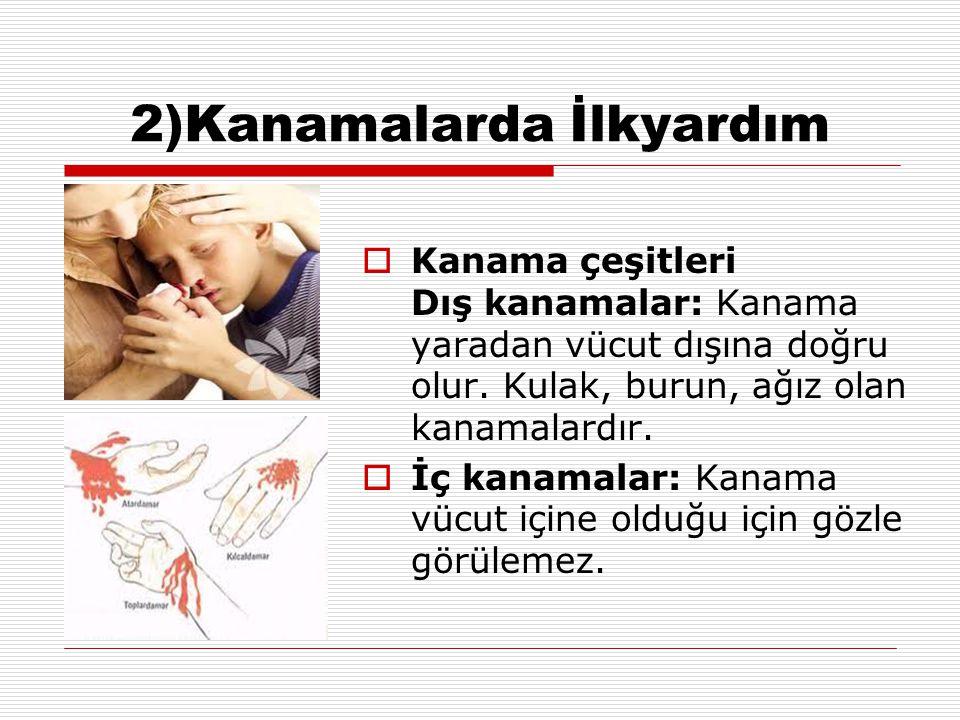 2)Kanamalarda İlkyardım  Kanama çeşitleri Dış kanamalar: Kanama yaradan vücut dışına doğru olur. Kulak, burun, ağız olan kanamalardır.  İç kanamalar