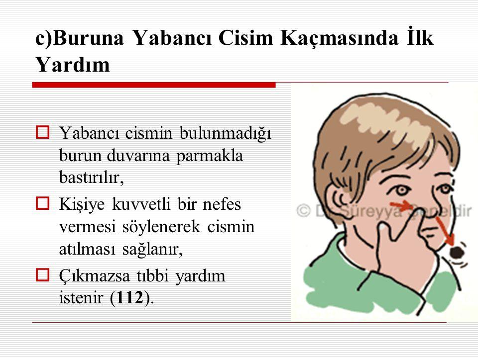 c)Buruna Yabancı Cisim Kaçmasında İlk Yardım  Yabancı cismin bulunmadığı burun duvarına parmakla bastırılır,  Kişiye kuvvetli bir nefes vermesi söyl