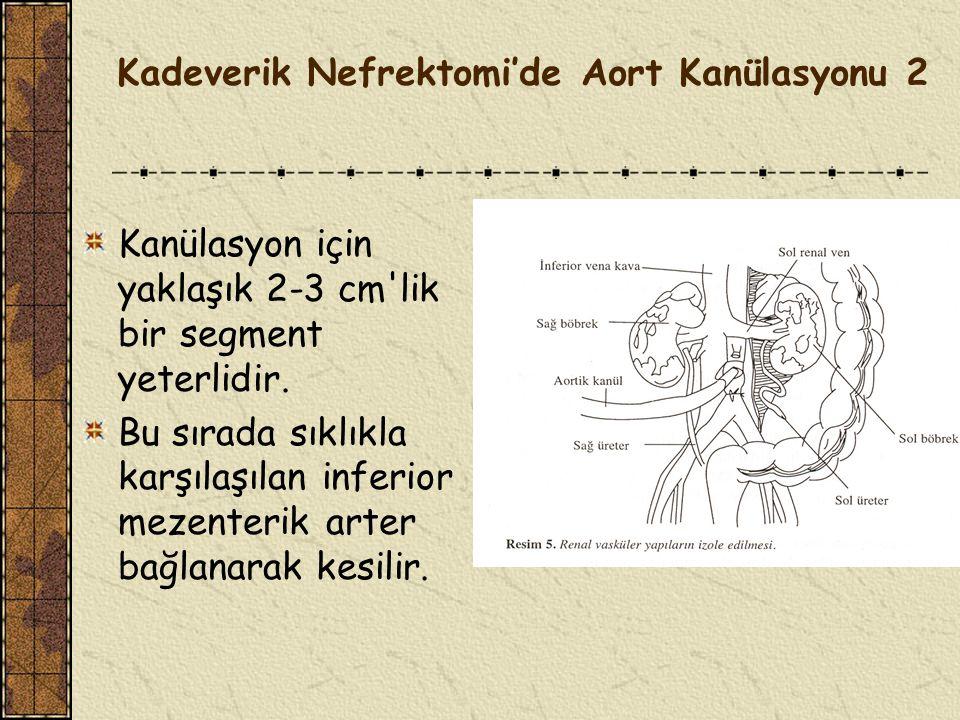 Kadeverik Nefrektomi'de Aort Kanülasyonu 1 Abdominal aortun askıya alınması için, ince barsaklar retroperitondan ayrılarak Treitz ligamanına kadar serbestleştirilir.