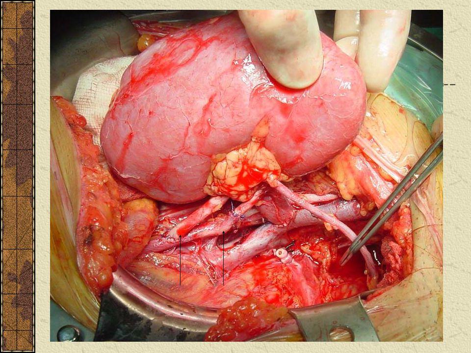 Renal Transplantasyon Cerrahi Teknik-Arter Anastomozu İnternal iliak arterin mobilize edilmesi Renal arter genellikle internal iliak arterle uc-uca an