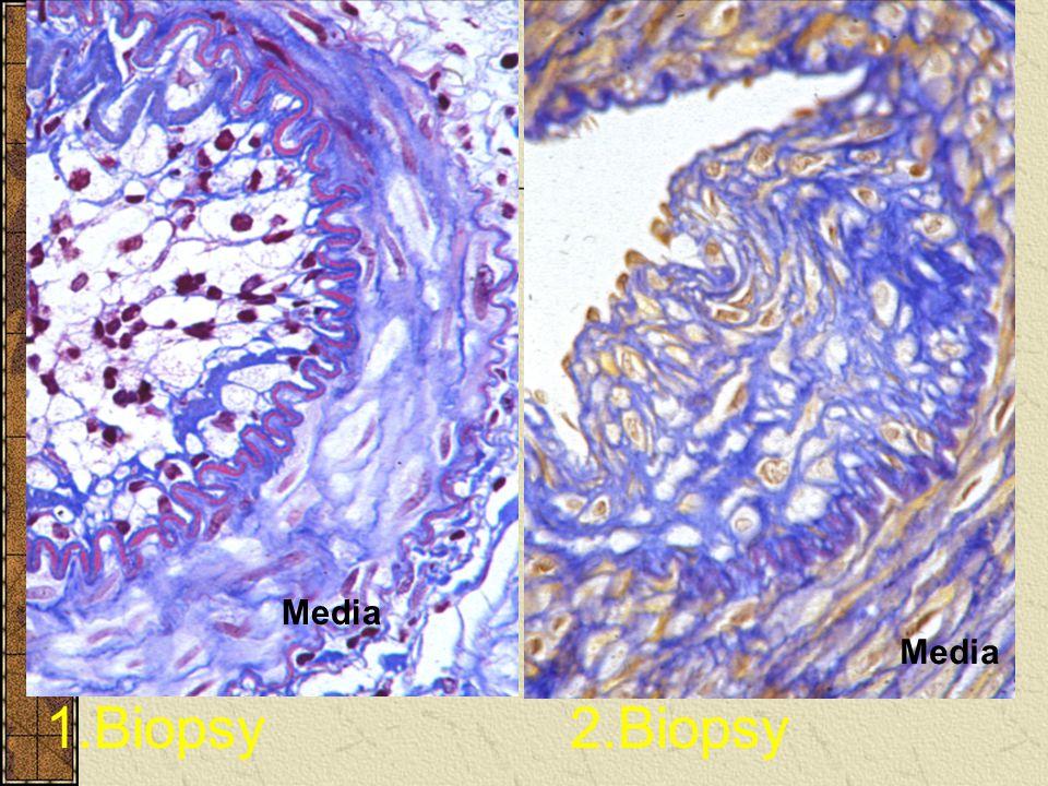 Kronik Red 3 aydan sonra gelişir. Greft fonksiyonunun giderek azalmasıyla tespit edilir. Hem immunolojik ve hem de immunolojik olmayan faktörler rol o
