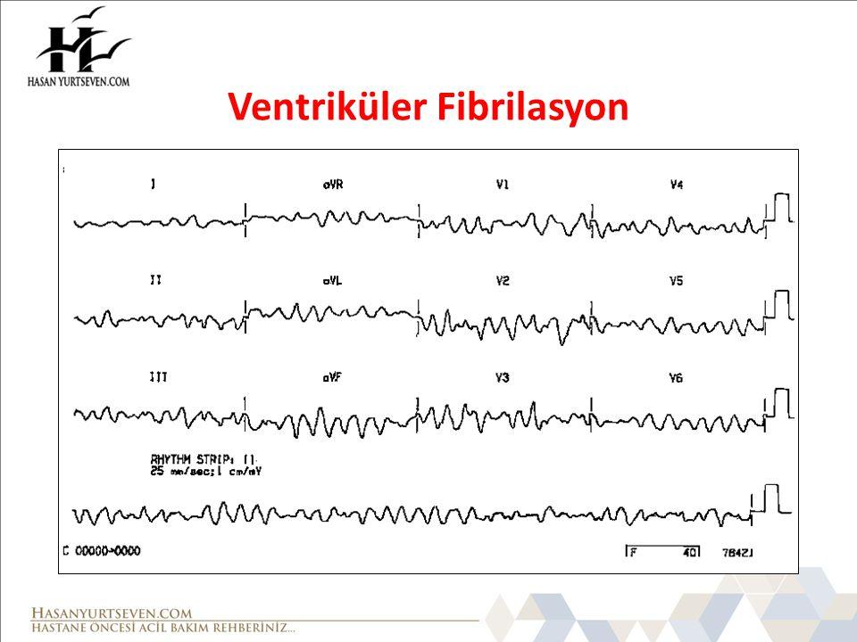 Ventriküler Fibrilasyon