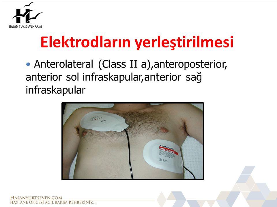 Anterolateral (Class II a),anteroposterior, anterior sol infraskapular,anterior sağ infraskapular Elektrodların yerleştirilmesi