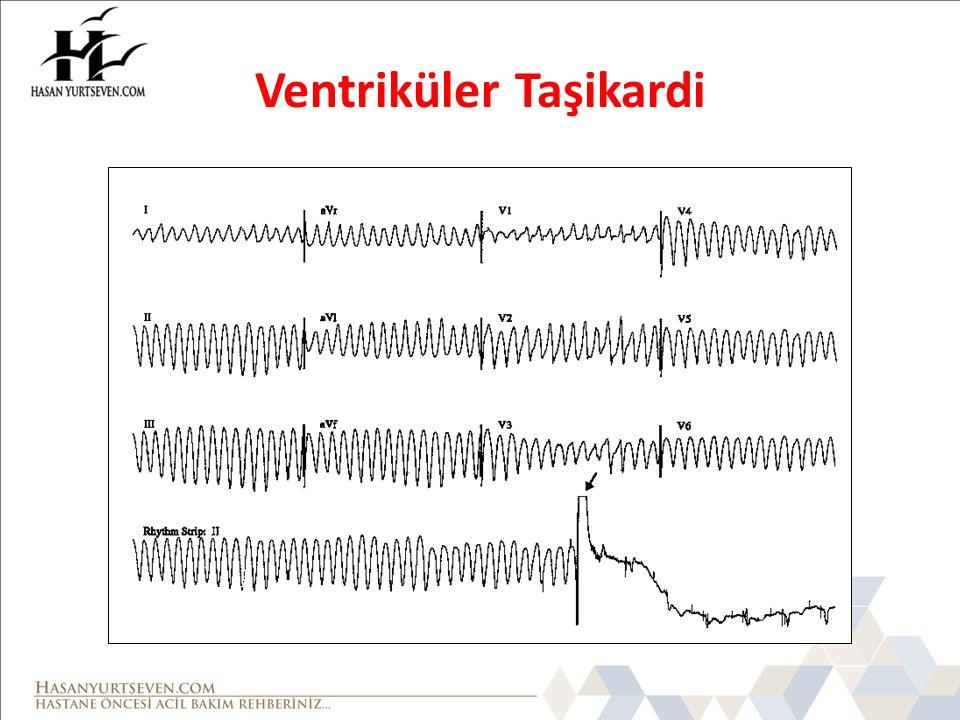 Ventriküler Taşikardi (VT) Tanımı: Ventriküllerin herhangi bir ya da birkaç yerinden peş peşe üç veya daha fazla ventriküler kompleksin birbirini izlemesidir.