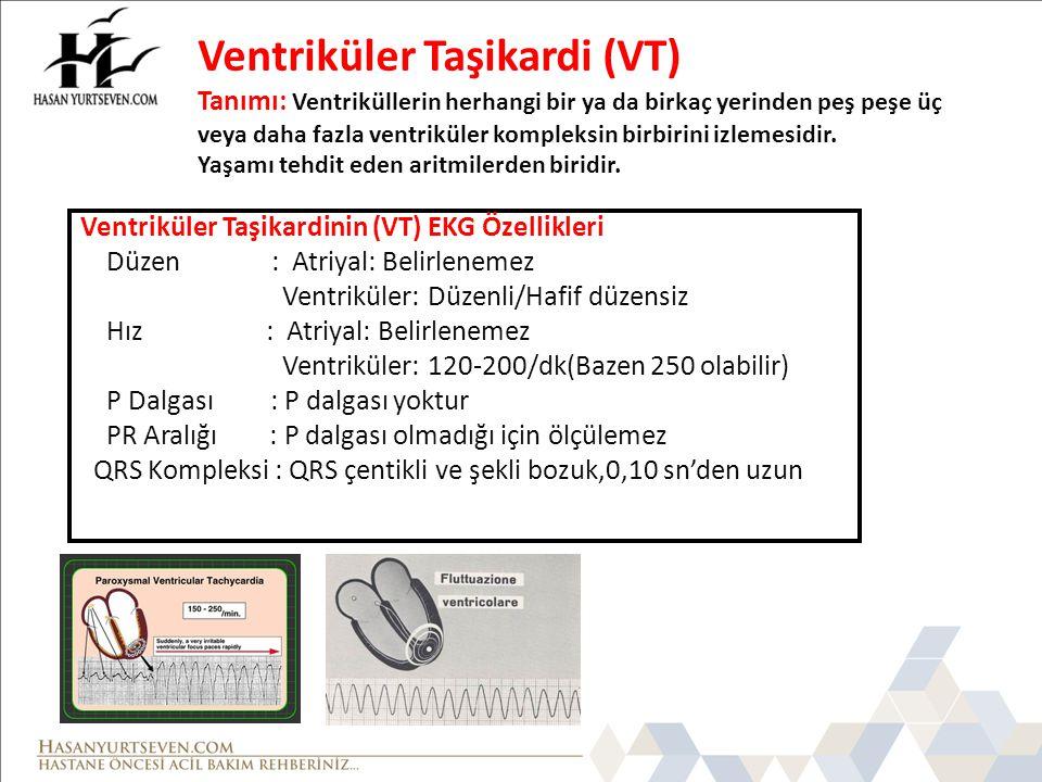 Ventriküler Taşikardi (VT) Tanımı: Ventriküllerin herhangi bir ya da birkaç yerinden peş peşe üç veya daha fazla ventriküler kompleksin birbirini izle