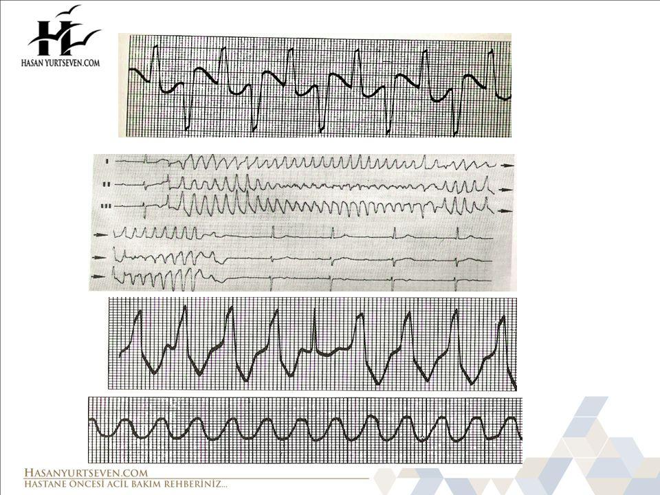 Defibrilasyon Başarılı şok: şok verildikten sonra VF nin en az 5 saniye durması olarak tanımlanır.